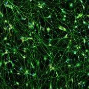 Quick-Neuron™ Excitatory - Human iPSC-derived Neurons (F, 67 yr donor) - Alzheimer's Disease