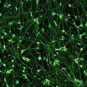 Quick-Neuron™ Excitatory - Human iPSC-derived Neurons (F, 11 yr donor) - Epilepsy
